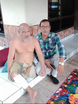 Pemberian Bantuan Kaki Palsu Dari Yayasan Ganesha